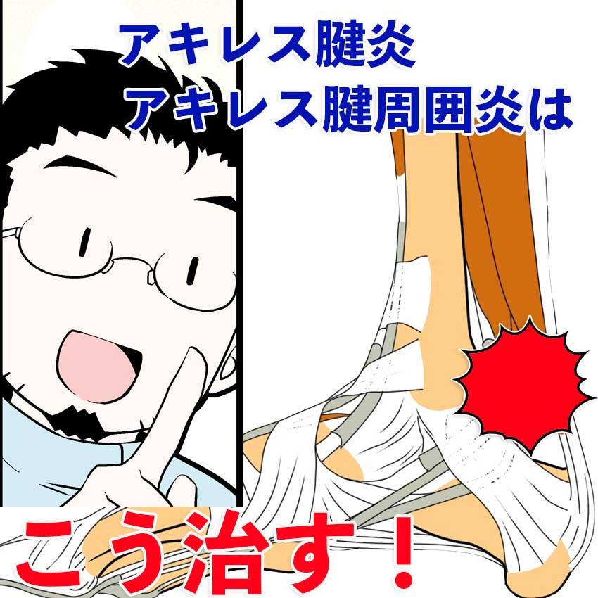 アキレス腱炎 アキレス腱周囲炎はこうして治す!